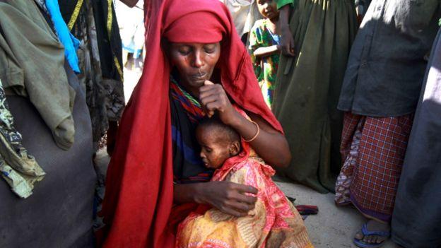 'Yardım gelmezse Somali'de 58 bin çocuk açlıktan ölecek'