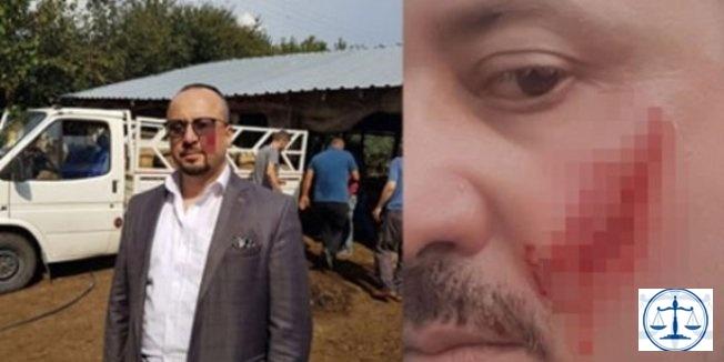 İcra takibi yapan avukatın yanağını ısırarak kopardı
