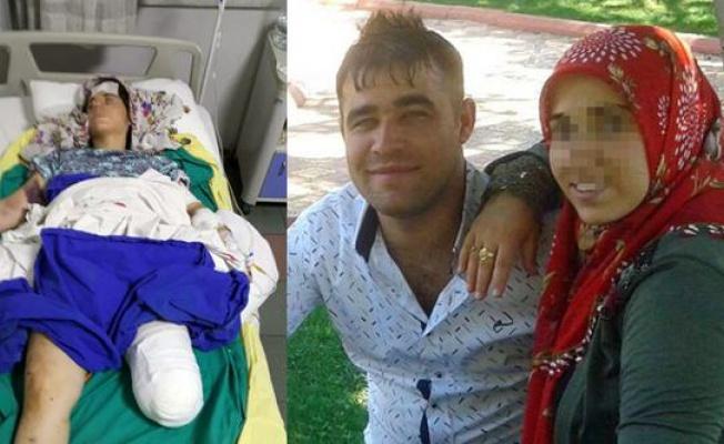 Korkunç olay!.. Hamile karısına önce işkence yaptı sonra vurdu